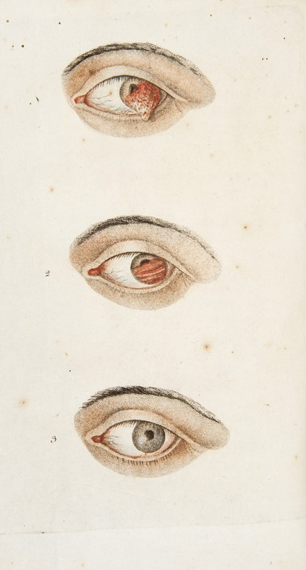 Ophthalmology and Medicine.  Lot of 9 works.  - Auction MERRY CHRISTMAS BOOKS TIMED AUCTION - Bado e Mart Auctions